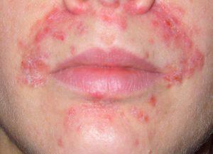 Perioral dermatit fakta och tips